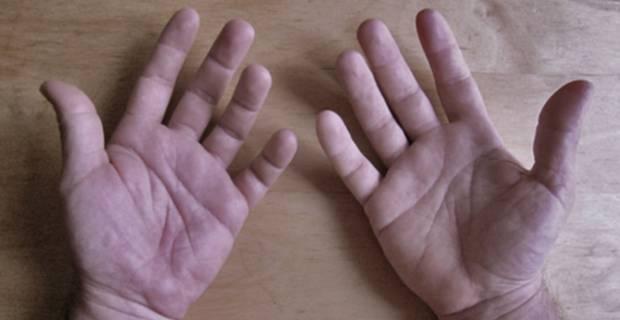 pie hinchado por acido urico otros medicamentos para la gota