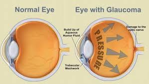 glaucoma,1