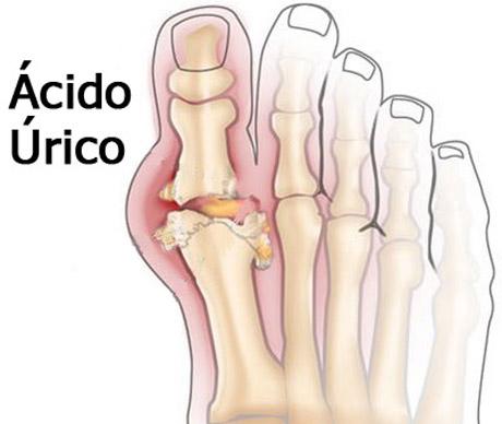 remedios caseros para el acido urico en los pies el vinagre sube el acido urico el alcohol y el acido urico