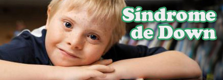 sindrome-de-down1