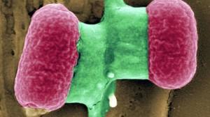 intestinal-Escherichia-extendido-Alemania-DPA_CLAIMA20110527_0168_24