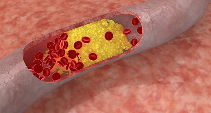 como-bajar-el-colesterol-naturalmente-680x365