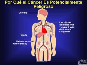 metastasico1