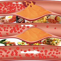 Como-bajar-el-colesterol-rapidamente-01-