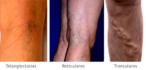 tipo-varices-distinguir