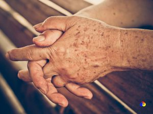 manchas-manos-log